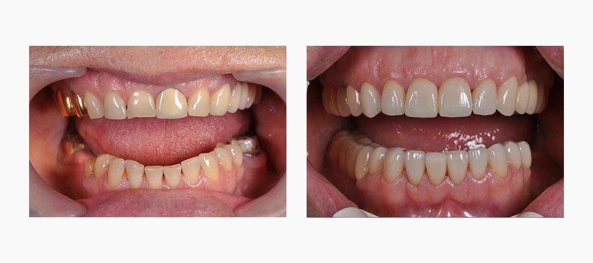 Фото до и после установки коронок из металлокерамики на зубы