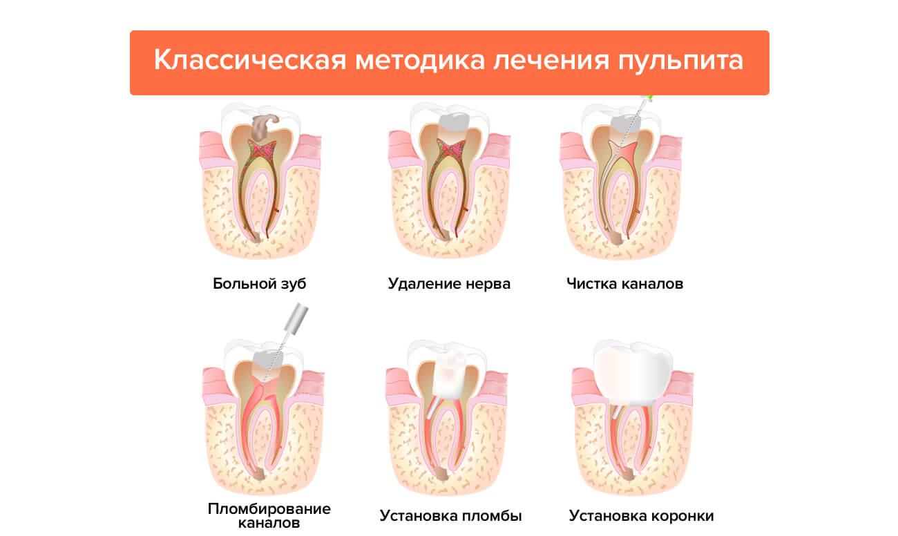 Классическая методика лечения пульпита в картинках