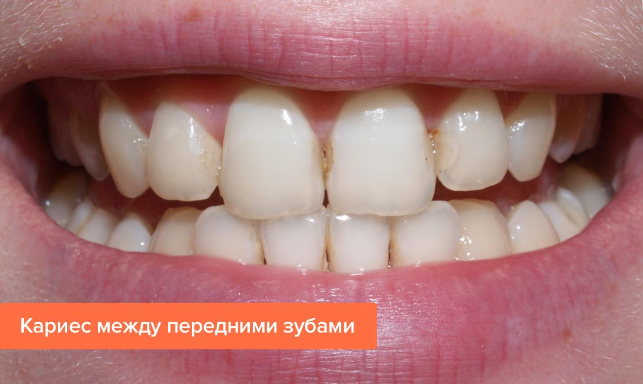 Кариес между зубами — что делать и как лечить