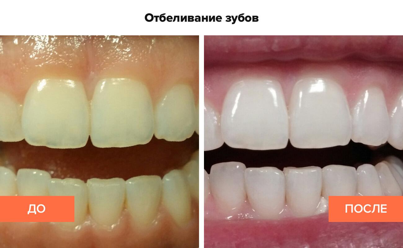 Фото пациента до и после отбеливания зубов
