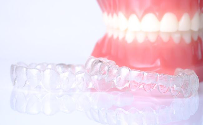 Фото накладок на зубы для исправления прикуса