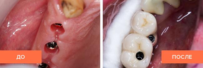 Фото до и после процедуры имплантации зубов