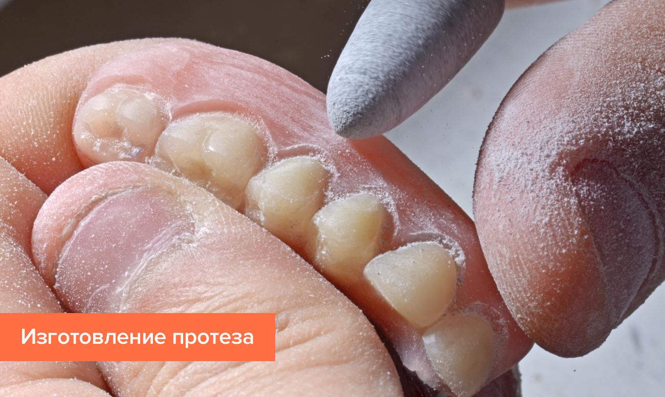 Фото изготовления протеза