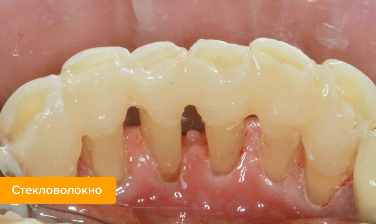 Фото зубов шинированных адгезивной стекловолоконной лентой