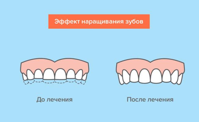 Эффект от наращивания зубов в картинках