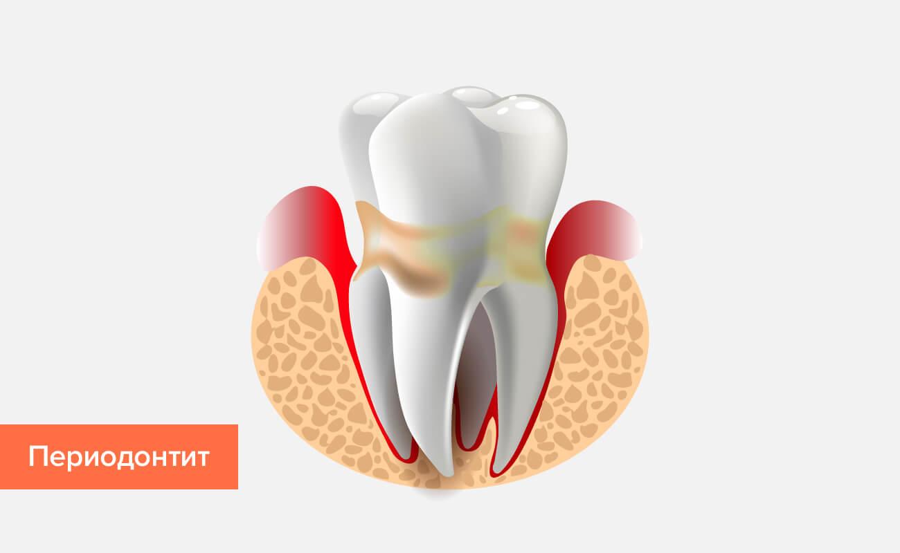 Периодонтит зуба в картинках