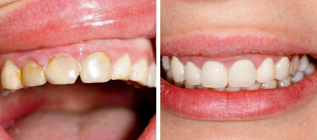 срок службы виниров на зубы отзывы