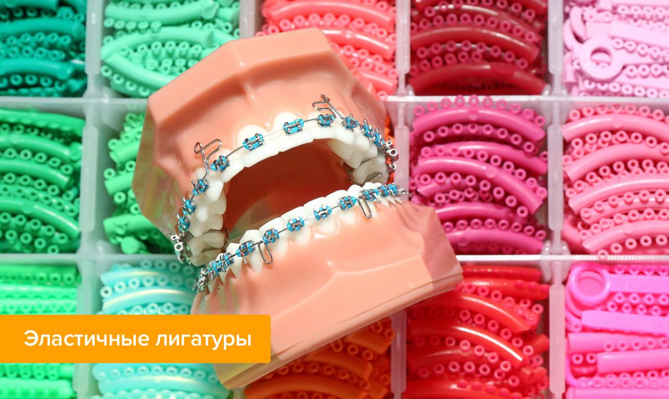 Фото эластичных лигатур на зубах