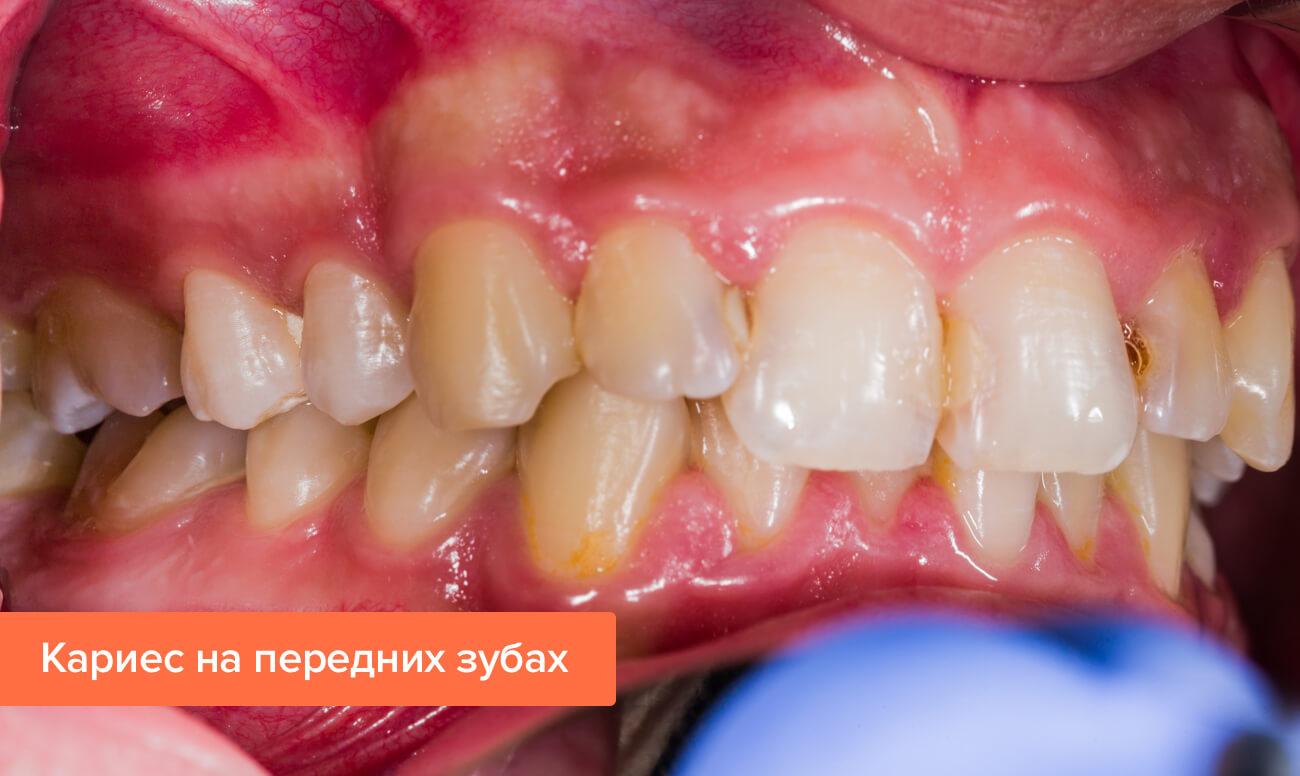 Фото кариеса на передних зубах