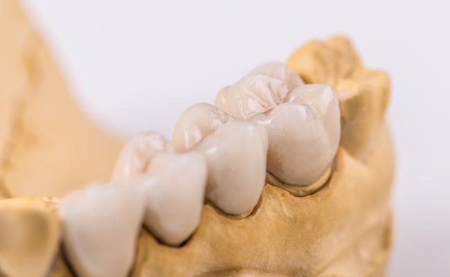 Фото зубов из металлокерамики