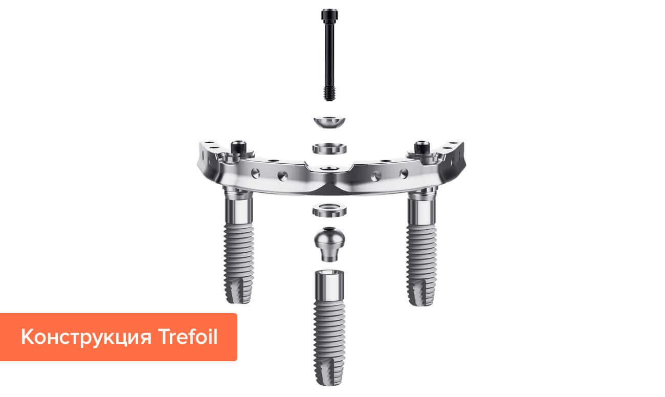 Фото конструкции Trefoil для имплантации нижних зубов