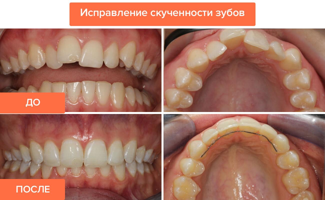 Как выровнять зубы в домашних условиях подростку