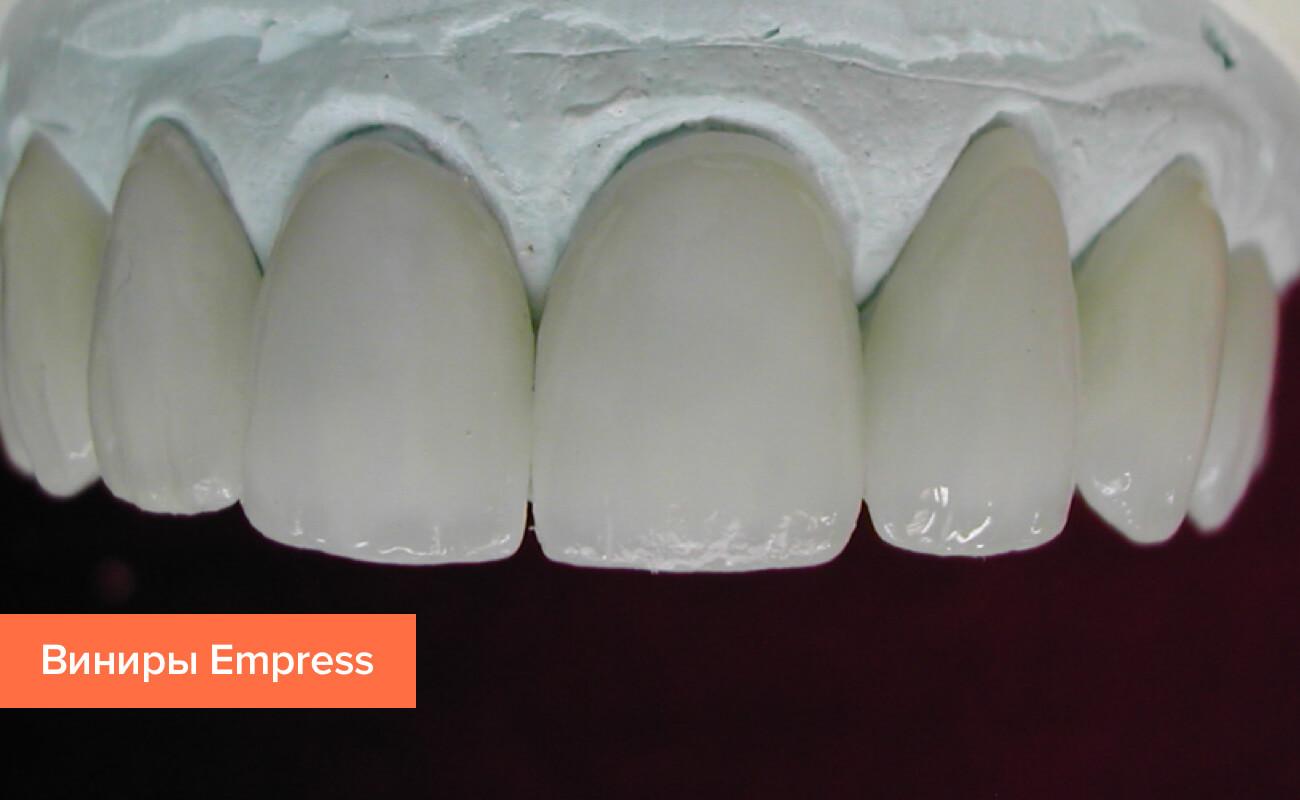 стоимость зубных виниров