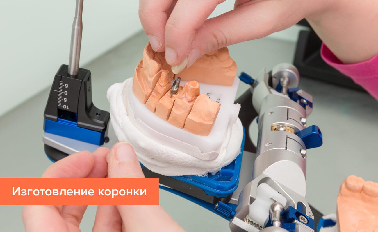 Фото процесса изготовления коронки