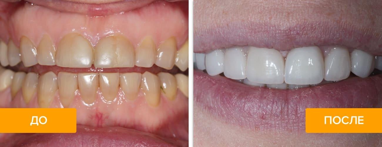 Реставрация передних зубов без виниров