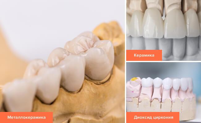 Фото материала для протезирования зубов