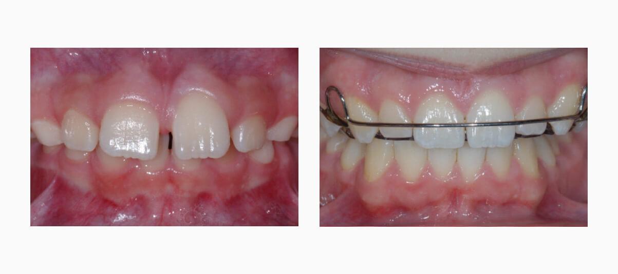 Фото пациента до и после лечения пластинками на зубах