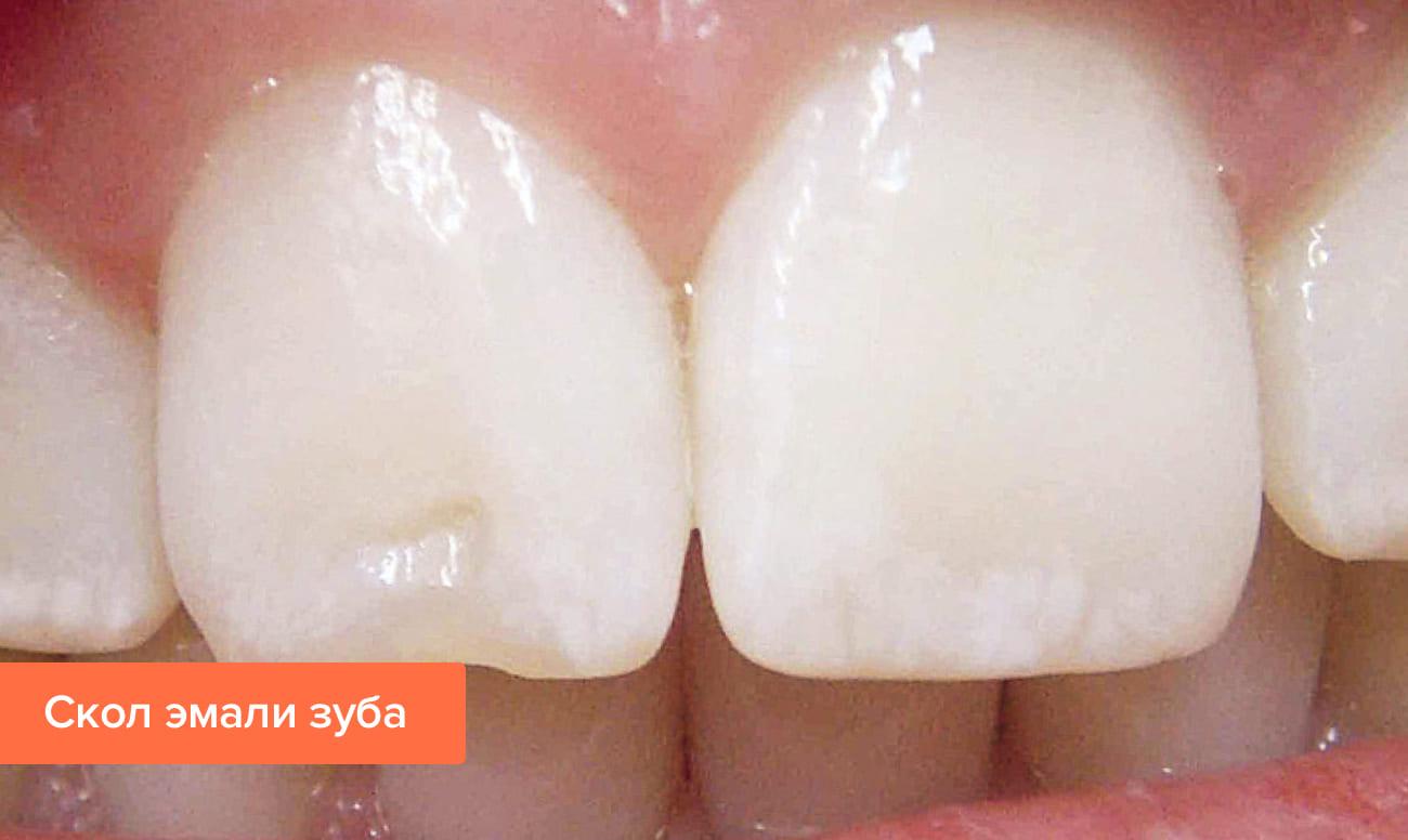 Фото маленького скола эмали переднего зуба