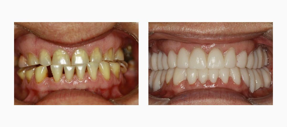 Фото пациента до и после имплантации зубов