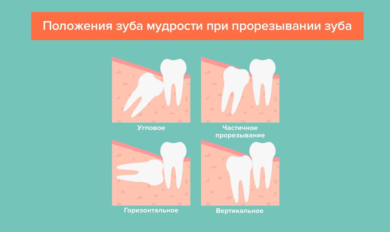 Положения зуба мудрости при прорезывании зуба в картинках