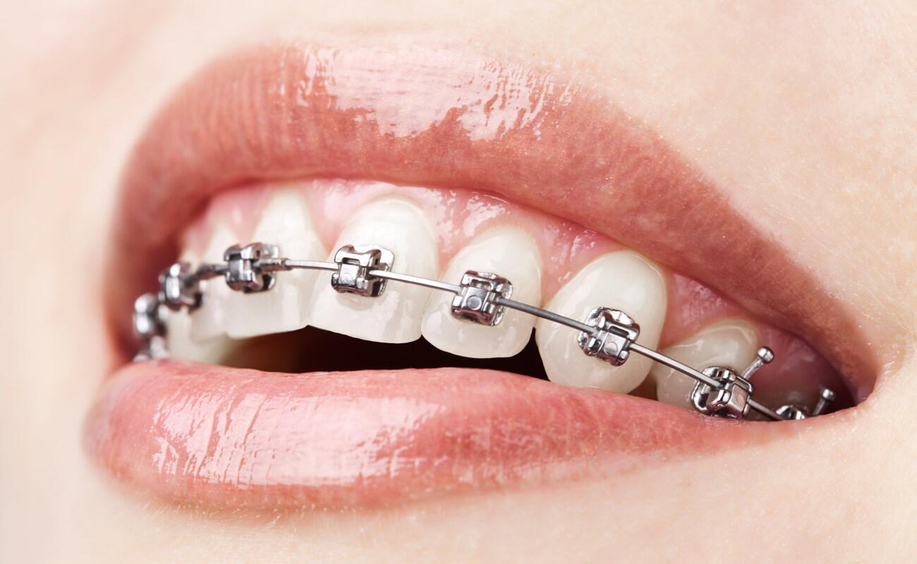 Фото металлических самолигирующих брекетов на зубах
