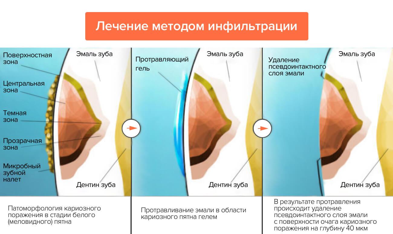 Лечение методом инфильтрации в картинках