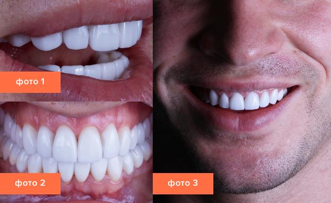 Znalezione obrazy dla zapytania Установка виниров на зубы