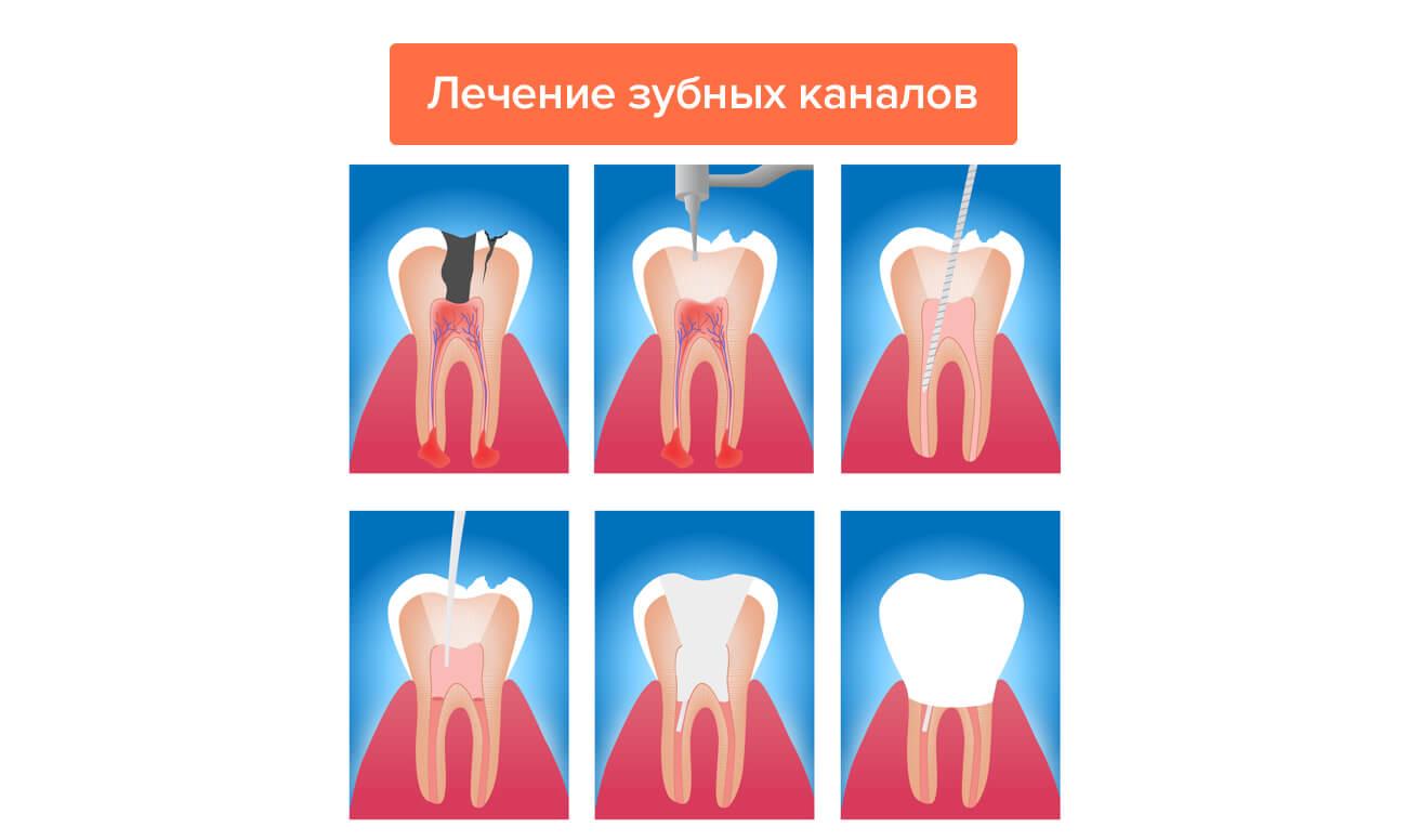 Лечение зубных каналов в картинках