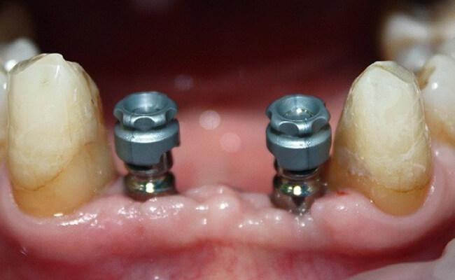 Фото протезирования зубов при пародонтозе