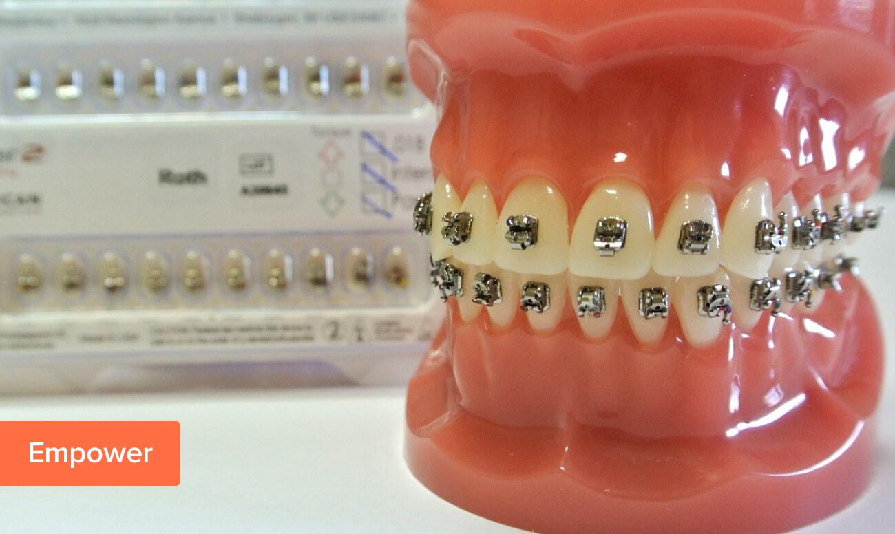 Фото металлических брекетов American Orthodontics Empower