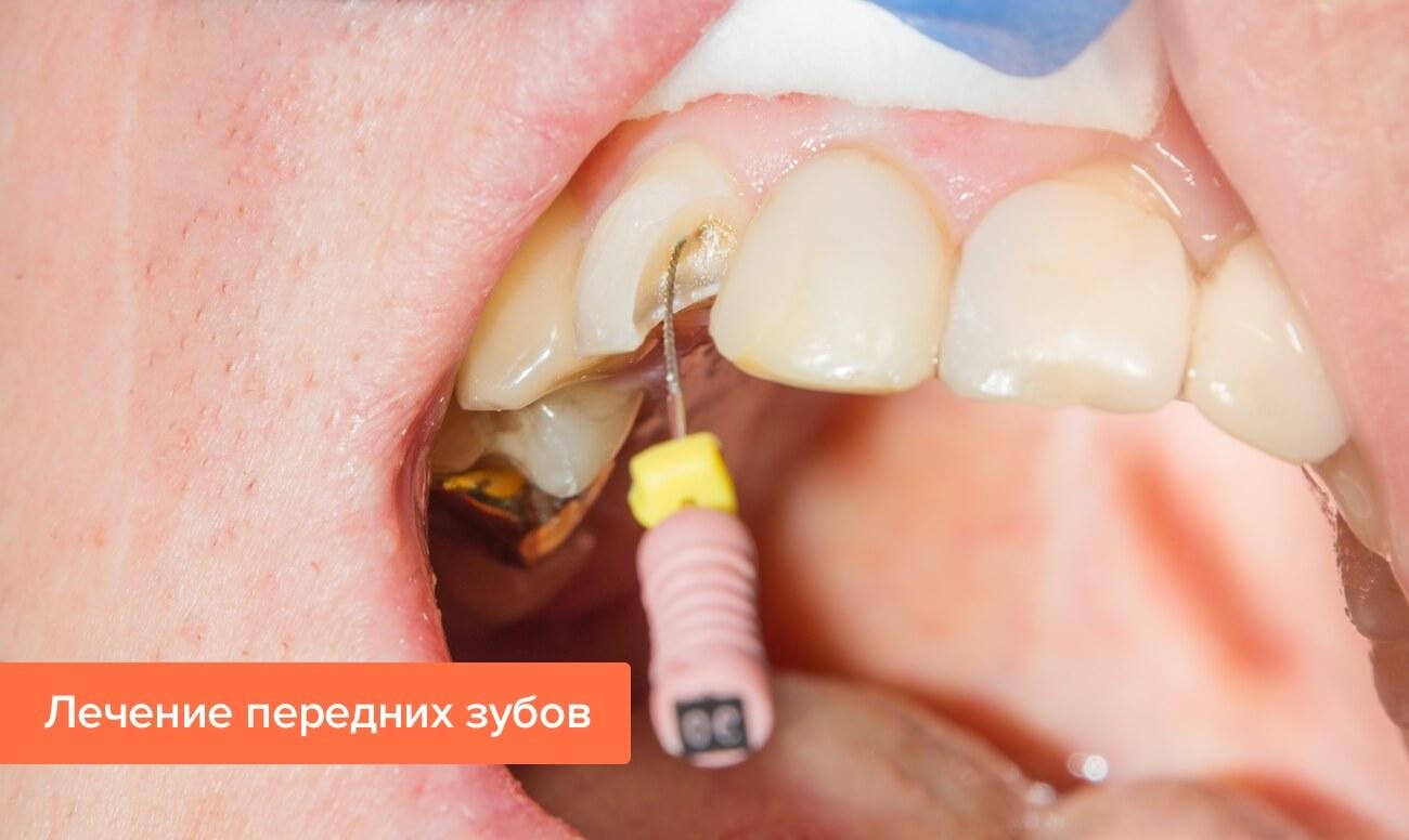 Фото лечения передних зубов