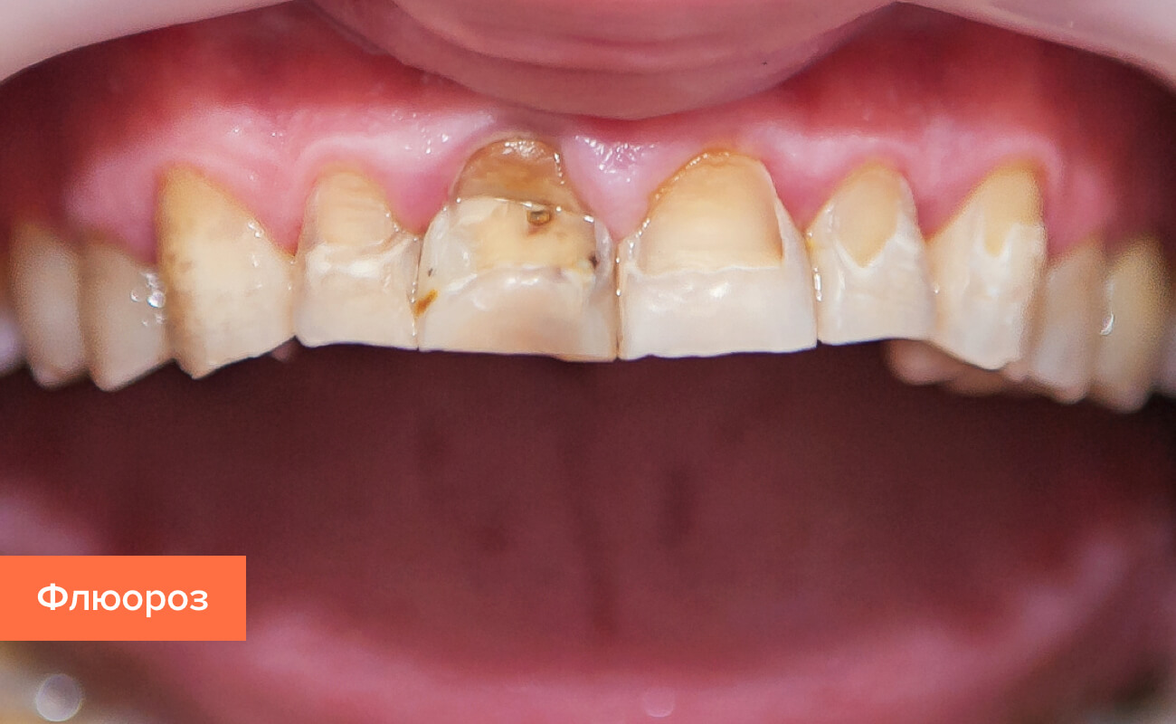 Фото флюороза на зубах
