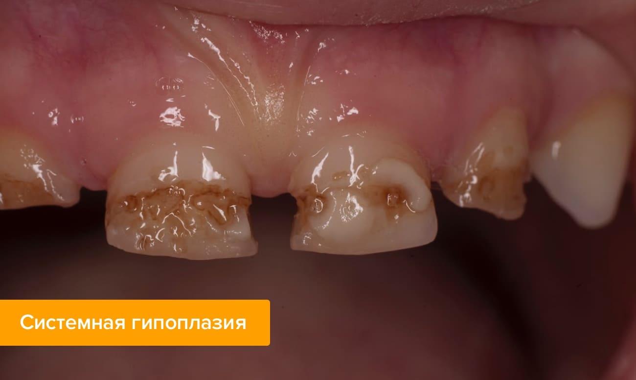 Фото системной гипоплазии на зубах ребенка
