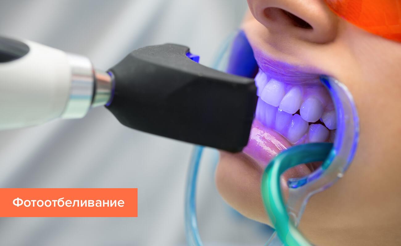 Фото процедуры фотоотбеливания зубов