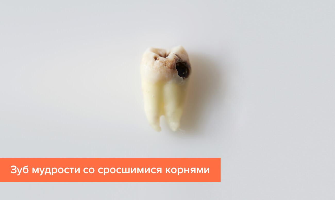 Фото зуба мудрости со сросшимися корнями