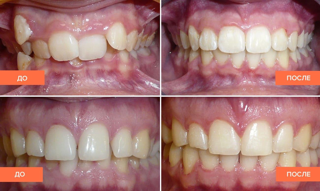 796f9e6083ae Выравнивание зубов у взрослых  как выровнять зубы — все способы на ...