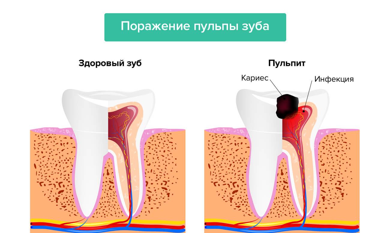 Поражение пульпы зуба в картинках