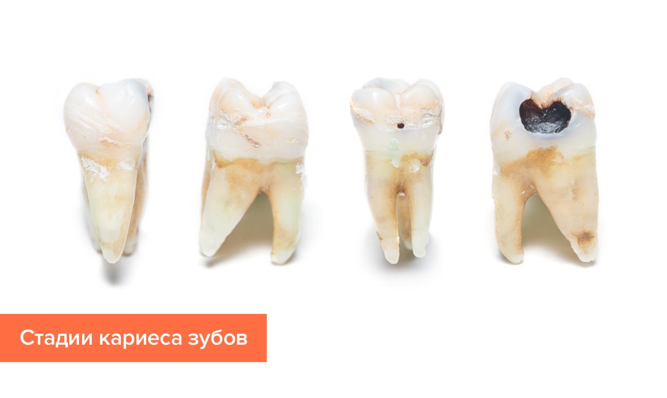 Фото стадий кариеса зубов