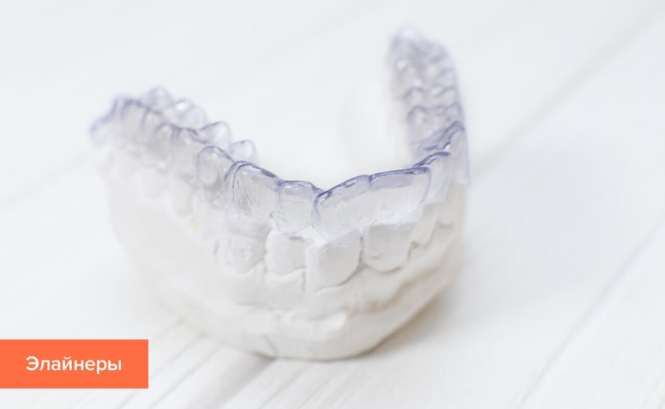 Фото элайнеров для выравнивания зубов