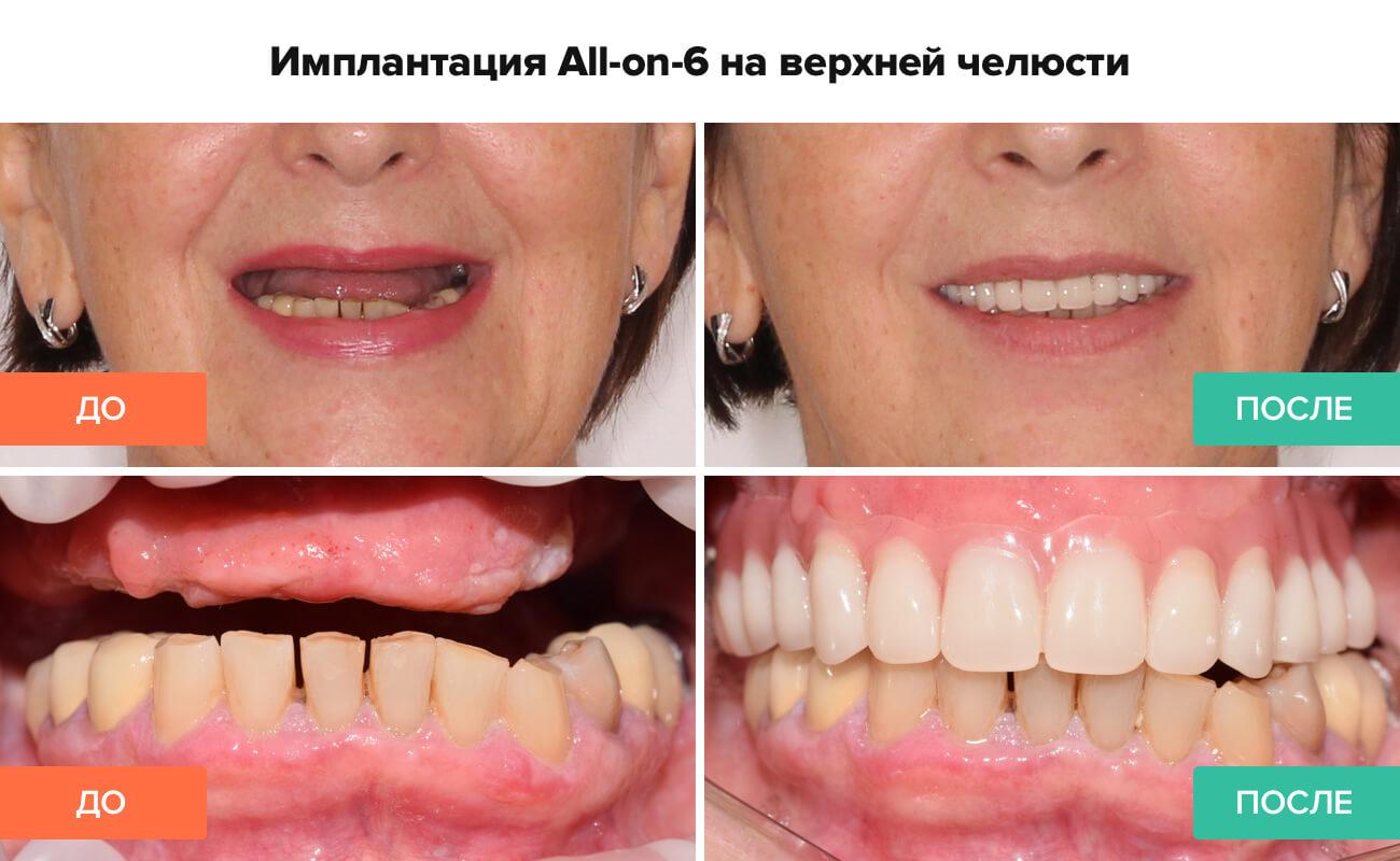 Фото пациента до и после имплантации All-on-6 на верхней челюсти