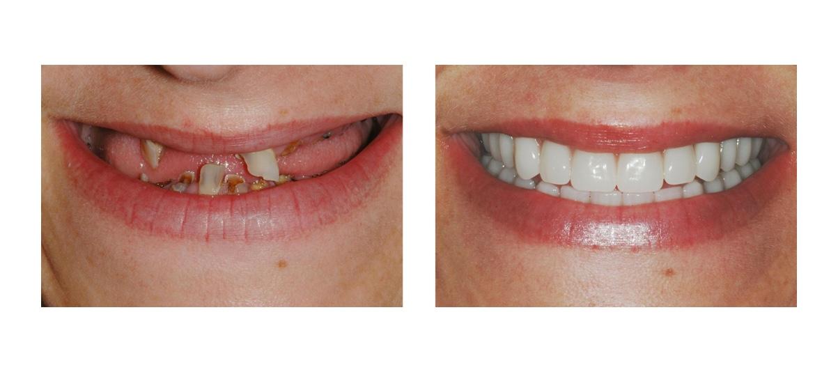 Фото пациента до и после установки скуловых имплантов Zygoma
