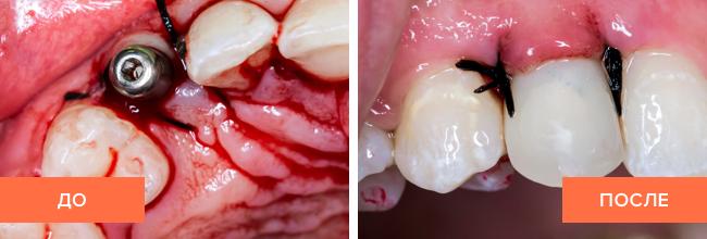 Фото до и после имплантации одного зуба