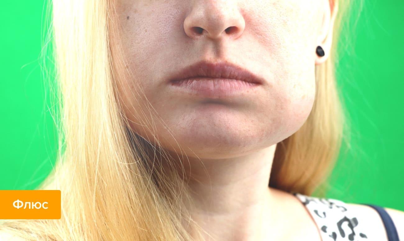Фото зубного флюса