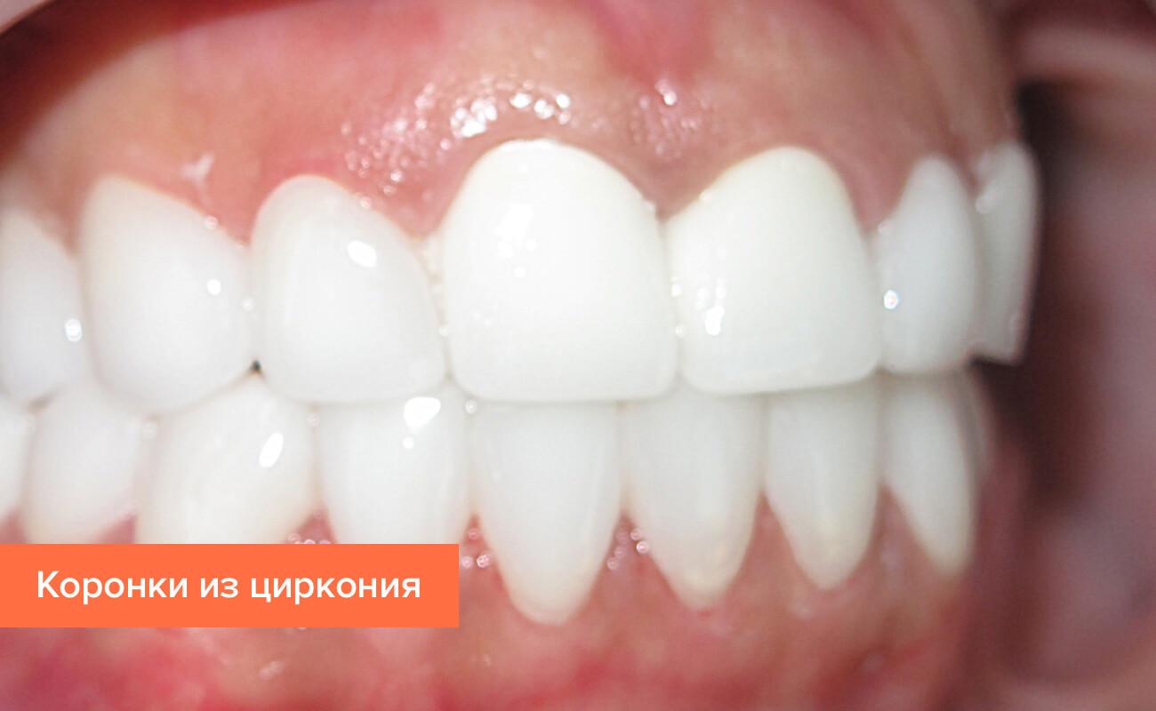 Фото коронок из циркония на зубах