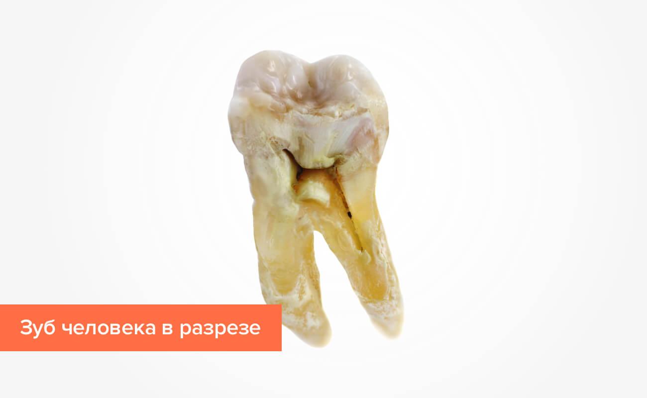 Фото зуба человека в разрезе