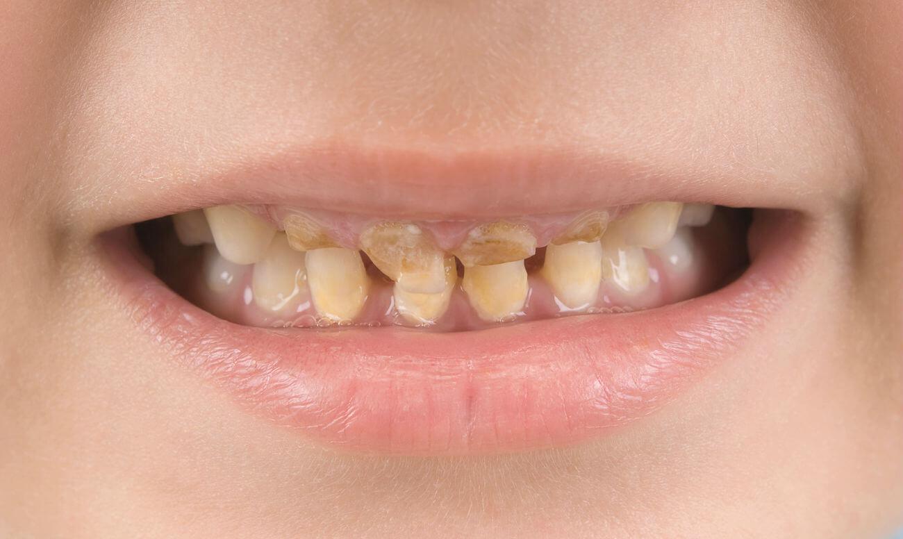 Бутылочный кариес на зубах ребенка