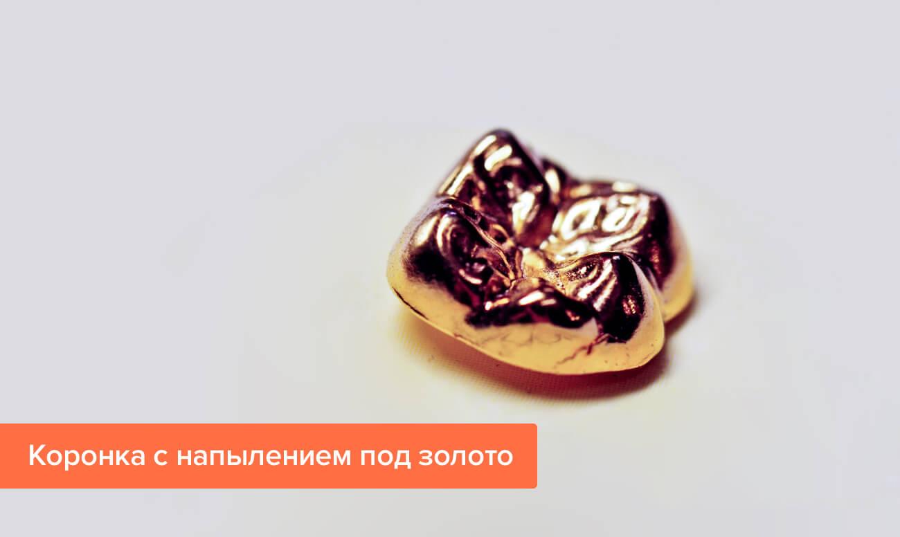 Фото коронки с напылением под золото