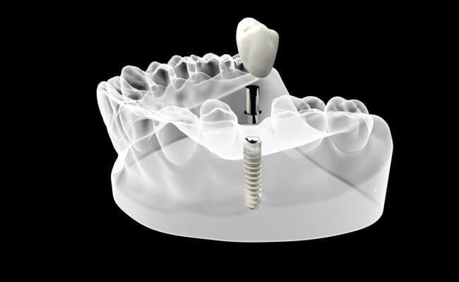 Фото имплантов на жевательные зубы