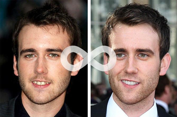 Фто кривых зубов Мэттью Льюиса до и после лечения