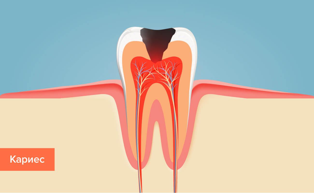 Кариес на зубе в картинках